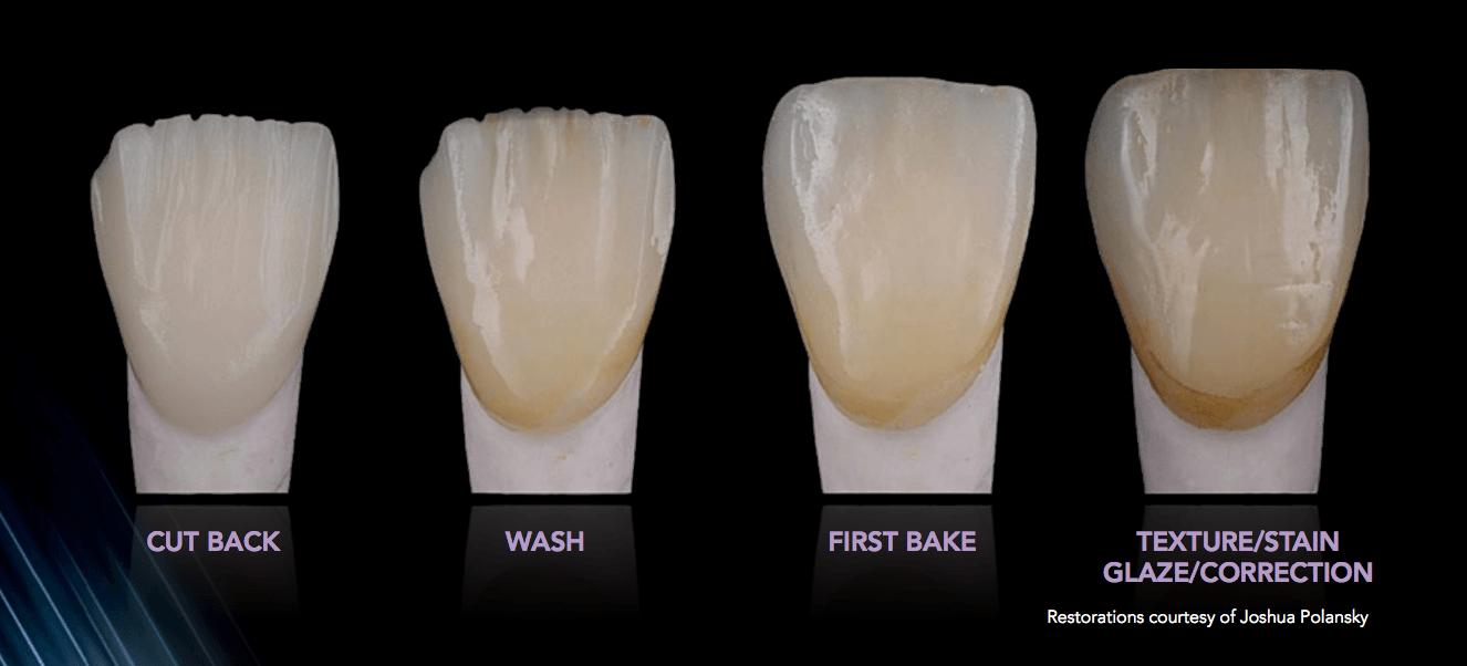 Pressing Lithium Disilicate With Gc Lisi Porcelain 187 Dorado